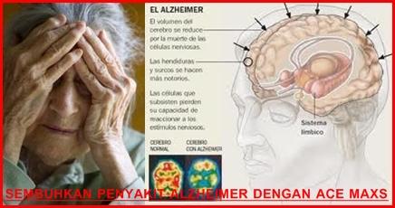 Testimoni ace maxs sembuhkan alzheimer